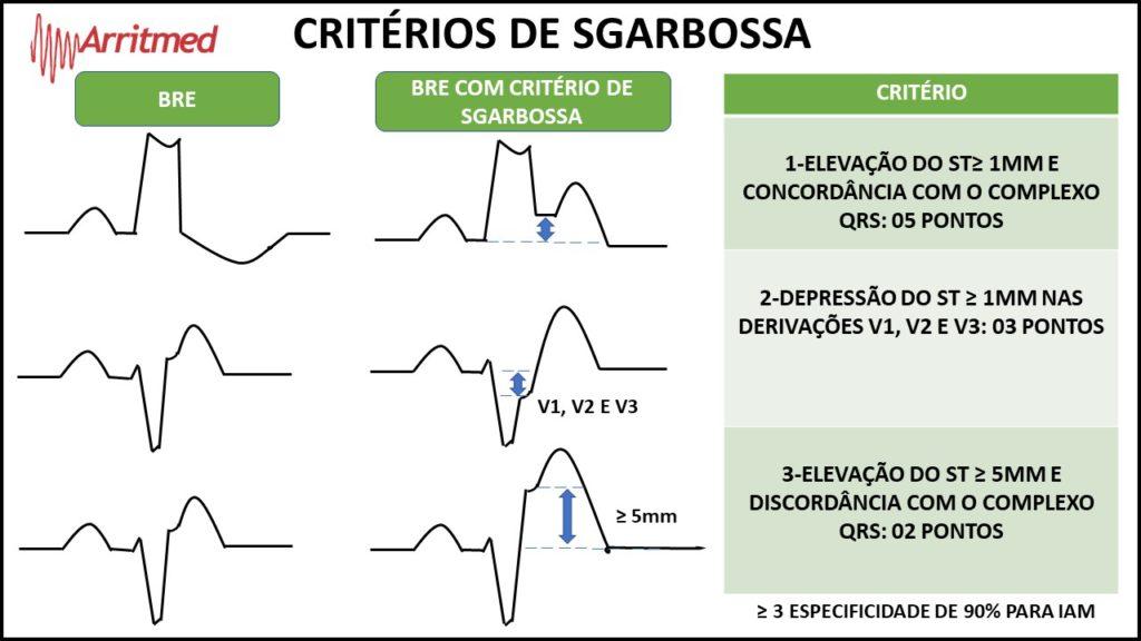 Critérios de Sgarbossa